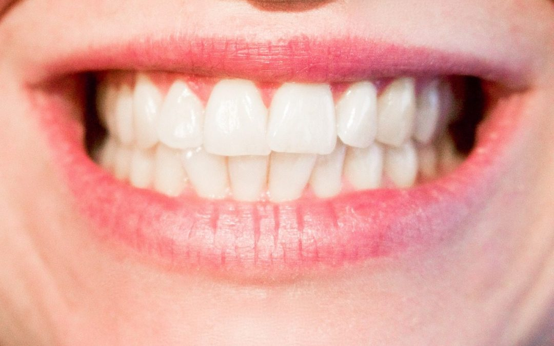 Top Ten Reasons to Save Your Teeth