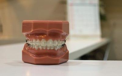 Orthodontics at Dr. Drew and Crew